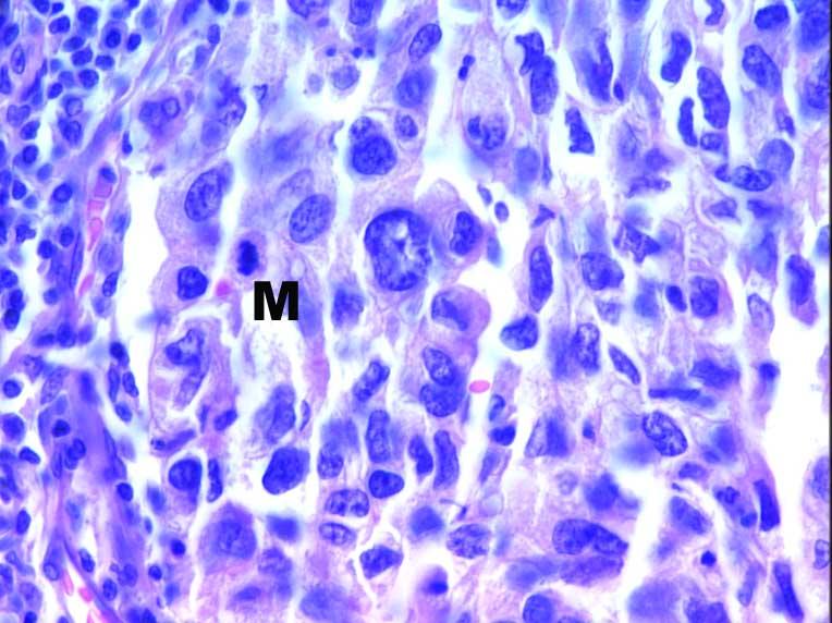 Carcinome Glandulaire
